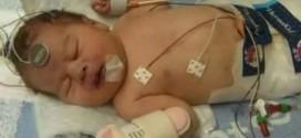 تجميد مولود ثلاثة أيام لانقاذ حياته