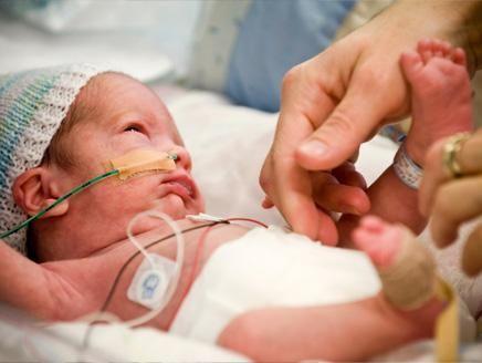 الولادة المبكرة أكثر الأسباب المؤدية لوفاة الأطفال الصغار