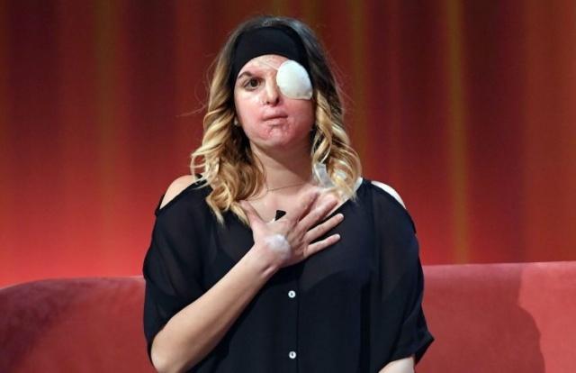 ملكة جمال إيطاليا التي أحرقها حبيبها تكشف وجهها للمرة الأولى