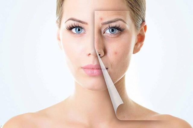 5 نصائح للتخلص من آثار حب الشباب والجروح على الجلد