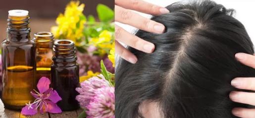 خلطة زيوت من اللي هي لعلاج فراغات الشعر بسهولة